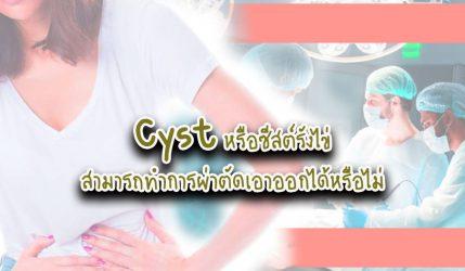 Cyst หรือซีสต์รังไข่ สามารถทำการผ่าตัดเอาออกได้หรือไม่